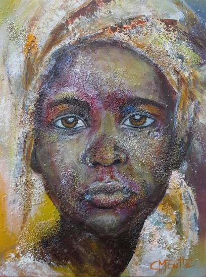 Brûlure africaine